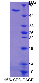 MTA1 Protein - Recombinant  Metastasis Associated Protein 1 By SDS-PAGE