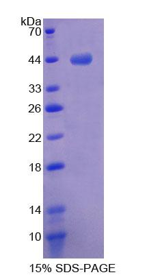 MTPN / Myotrophin Protein - Recombinant  Myotrophin By SDS-PAGE