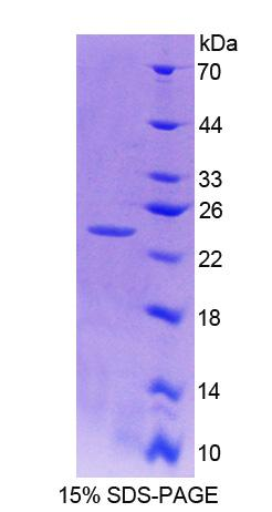 NIN / Ninein Protein - Recombinant Ninein By SDS-PAGE