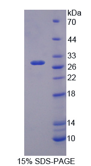 NOS1AP / CAPON Protein - Recombinant Nitric Oxide Synthase 1 Adaptor Protein By SDS-PAGE