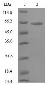 NRF1 / NRF-1 Protein - (Tris-Glycine gel) Discontinuous SDS-PAGE (reduced) with 5% enrichment gel and 15% separation gel.