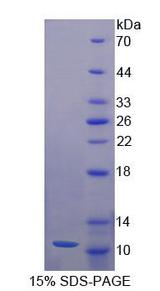 NRG4 Protein - Recombinant  Neuregulin 4 By SDS-PAGE