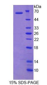 OGG1 Protein - Recombinant  Oxoguanine Glycosylase 1 By SDS-PAGE