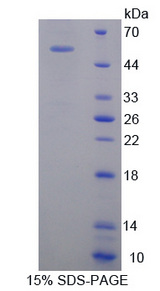 OSMR / IL-31R-Beta Protein - Recombinant  Oncostatin M Receptor By SDS-PAGE