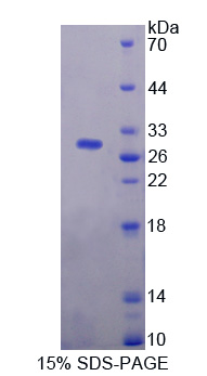 PAG1 Protein - Recombinant  Phosphoprotein Associated With Glycosphingolipid Microdomains 1 By SDS-PAGE