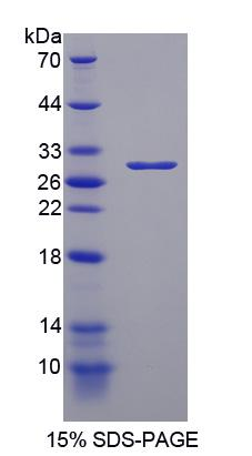 PARP1 Protein - Recombinant Poly ADP Ribose Polymerase By SDS-PAGE