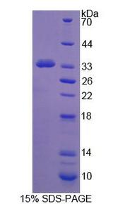 PCDH15 Protein - Recombinant Protocadherin 15 By SDS-PAGE