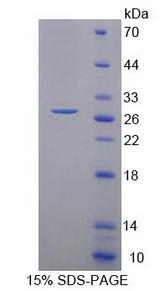 PCDHA1 Protein - Recombinant Protocadherin Alpha 1 By SDS-PAGE