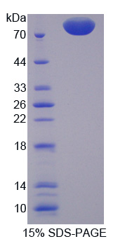 PCSK9 Protein - Recombinant Proprotein Convertase Subtilisin/Kexin Type 9 By SDS-PAGE