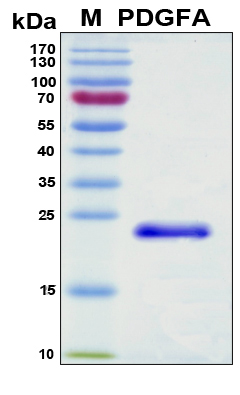 PDGF-AA Protein - SDS-PAGE under reducing conditions and visualized by Coomassie blue staining