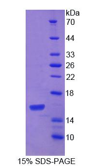 PDGF-CC Protein - Recombinant Platelet Derived Growth Factor C By SDS-PAGE