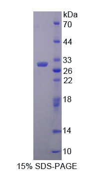 PDHX / Protein X / ProX Protein - Recombinant  Pyruvate Dehydrogenase Complex Component X By SDS-PAGE
