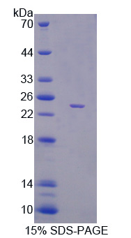 PEBP1 / RKIP Protein - Recombinant Phosphatidylethanolamine Binding Protein 1 By SDS-PAGE