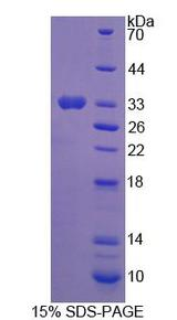PGAM2 Protein - Recombinant Phosphoglycerate Mutase 2, Muscle By SDS-PAGE