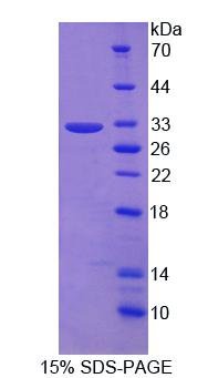 PIDD1 Protein - Recombinant Leucine Rich Repeats And Death Domain Containing Protein By SDS-PAGE