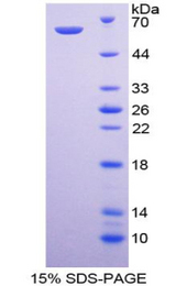 PIK3C2A Protein - Recombinant  Phosphoinositide-3-Kinase Class-2-Alpha Polypeptide By SDS-PAGE