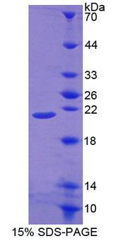 POFUT1 Protein - Recombinant Protein O-Fucosyltransferase 1 By SDS-PAGE