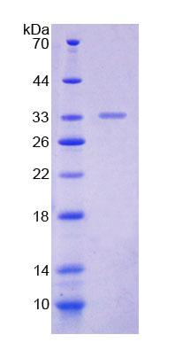 POLA1 / DNA Polymerase Alpha 1 Protein - Recombinant  Polymerase DNA Directed Alpha 1 By SDS-PAGE