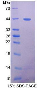 PRLTS / PDGFRL Protein - Recombinant Platelet Derived Growth Factor Receptor Like Protein By SDS-PAGE