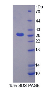 Prostaglandin D Synthase Protein - Recombinant Prostaglandin D2 Synthase, Hematopoietic By SDS-PAGE