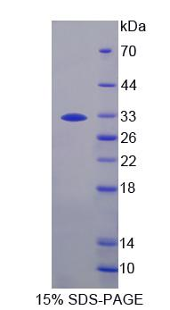 PZP Protein - Recombinant  Pregnancy Zone Protein By SDS-PAGE