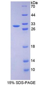 RAD50 Protein - Recombinant DNA Repair Protein RAD50 By SDS-PAGE