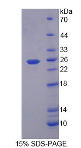RGS5 Protein - Recombinant Regulator Of G Protein Signaling 5 By SDS-PAGE