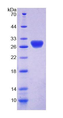 RTBDN / Retbindin Protein - Recombinant  Retbindin By SDS-PAGE