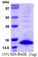 S100A9 / MRP14 Protein
