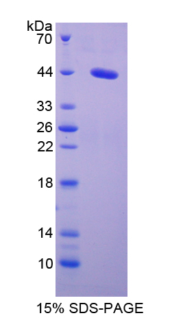 SAA1 / SAA / Serum Amyloid A Protein - Recombinant  Serum Amyloid A2 By SDS-PAGE