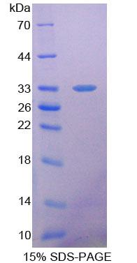 SDHA Protein - Recombinant  Succinate Dehydrogenase Complex Subunit A By SDS-PAGE