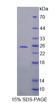 SDHB Protein - Recombinant  Succinate Dehydrogenase Complex Subunit B By SDS-PAGE