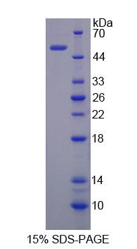 SESN2 / HI95 Protein - Recombinant  Sestrin 2 By SDS-PAGE