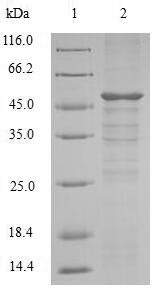 SETD4 Protein - (Tris-Glycine gel) Discontinuous SDS-PAGE (reduced) with 5% enrichment gel and 15% separation gel.