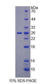 SLC30A6 Protein - Recombinant Solute Carrier Family 30, Member 6 By SDS-PAGE