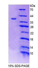SNTB1 / A1B Protein - Recombinant  Syntrophin Beta 1 By SDS-PAGE