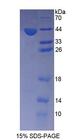 SNUPN Protein - Recombinant  Snurportin 1 By SDS-PAGE