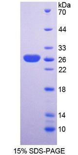 SNX18 Protein - Recombinant  Sorting Nexin Associated Golgi Protein 1 By SDS-PAGE