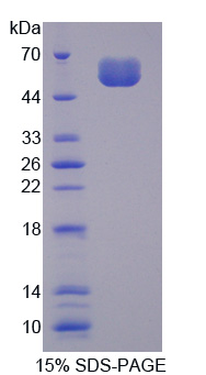SOST / Sclerostin Protein - Recombinant Sclerostin By SDS-PAGE