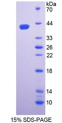 SPTLC1 / HSN1 Protein - Recombinant  Serine Palmitoyltransferase, Long Chain Base Subunit 1 By SDS-PAGE