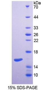 SPTLC2 / LCB2 Protein - Recombinant  Serine Palmitoyltransferase, Long Chain Base Subunit 2 By SDS-PAGE