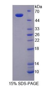 SPTLC3 / C20orf38 Protein - Recombinant Serine Palmitoyltransferase, Long Chain Base Subunit 3 By SDS-PAGE