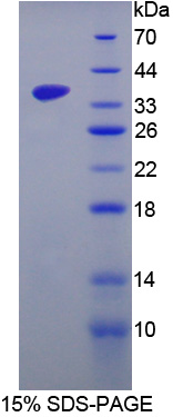 SRPK3 / MSSK1 Protein - Recombinant  SRSF Protein Kinase 3 By SDS-PAGE