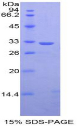 STAT1 Protein - Recombinant  Signal Transducer And Activator Of Transcription 1 By SDS-PAGE