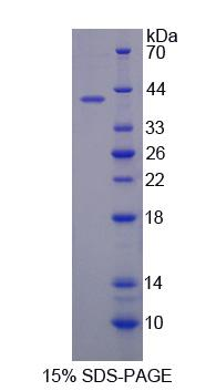 SULF2 / Sulfatase 2 Protein - Recombinant Sulfatase 2 By SDS-PAGE