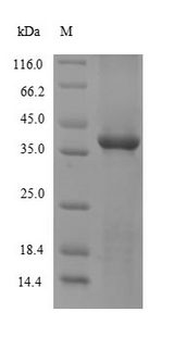 SULT1A1 / Sulfotransferase 1A1 Protein - (Tris-Glycine gel) Discontinuous SDS-PAGE (reduced) with 5% enrichment gel and 15% separation gel.