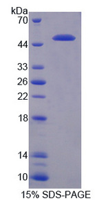 TICAM2 / TRAM Protein - Recombinant Toll Like Receptor Adaptor Molecule 2 By SDS-PAGE