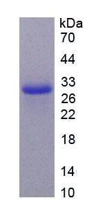 TNFSF12 / TWEAK Protein - Recombinant  Tumor Necrosis Factor Ligand Superfamily, Member 12 By SDS-PAGE