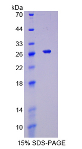 TNFSF9 / CD137L Protein - Recombinant  Tumor Necrosis Factor Ligand Superfamily, Member 9 By SDS-PAGE