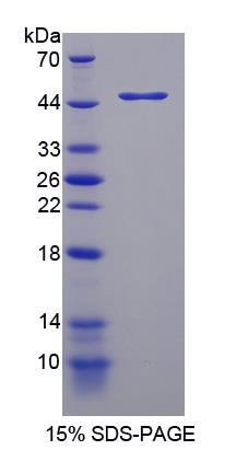 TPH2 Protein - Recombinant Tryptophan Hydroxylase 2 By SDS-PAGE